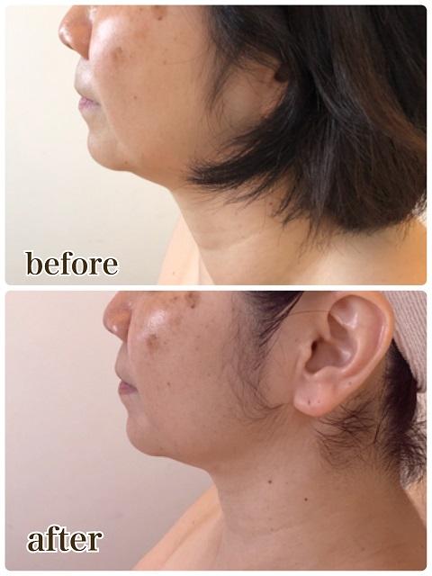 たるみ肌を加速させる姿勢とは?ビフォーアフター 予防美容でマイナス10歳肌 国立市フェイシャエステサロンFEEL国立