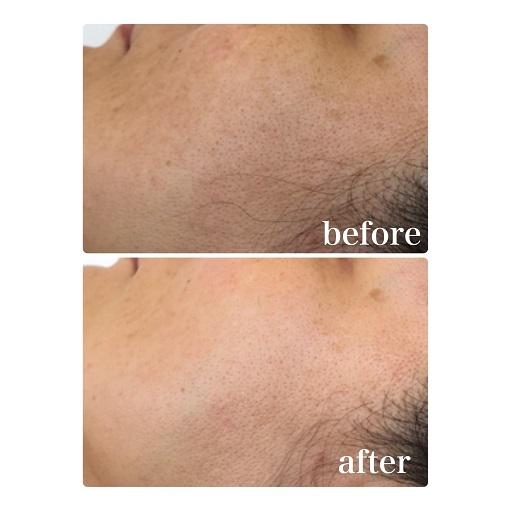 【ビフォーアフター】お手入れ不足のくすみ肌対策 予防美容でマイナス10歳肌 国立市フェイシャルエステサロンFEEL国立